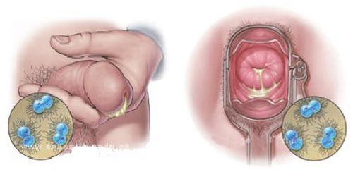 Triệu chứng bệnh lậu ở nam giới và nữ giới