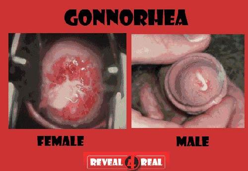 Biểu hiện bệnh lậu mãn tính ở nam và nữ