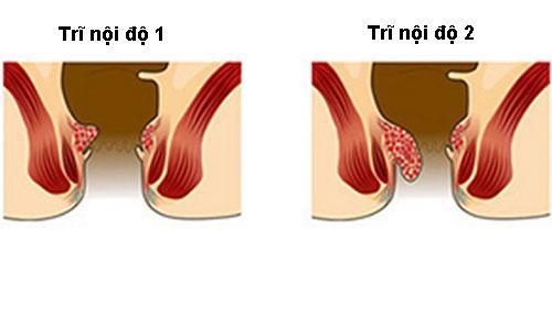 Trĩ nội độ 1, 2 và cách điều trị