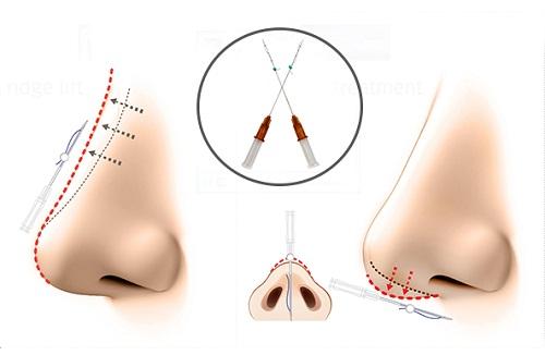 Tìm hiểu nâng mũi chỉ tự tiêu là gì?