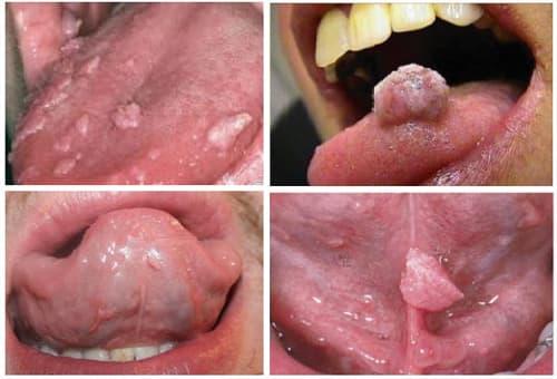 Nguyên nhân gây sùi mào gà ở miệng