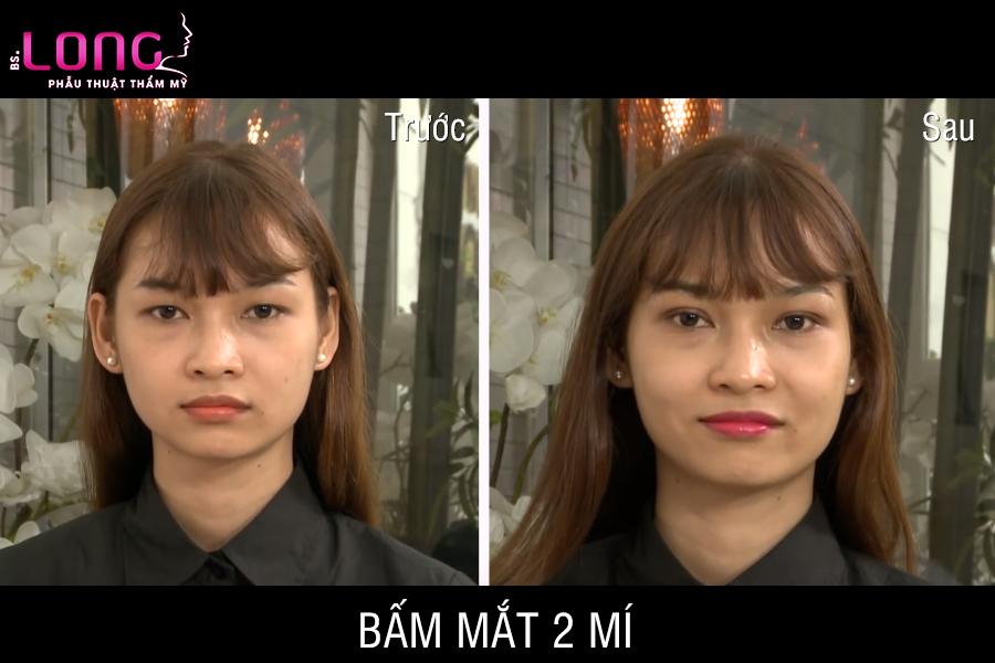 http://bacsilong.com/wp-content/uploads/2018/01/bam-mat-2-mi.jpg