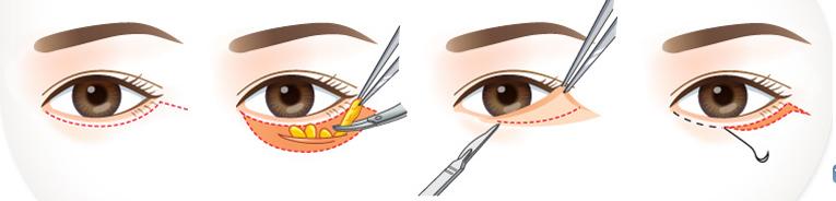 Mô phỏng quy trình lấy mỡ bọng mắt.