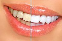Smile before and after teeth whitening treatment.