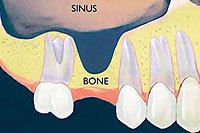 diagram of the sinus cavity filling empty space in jawbone