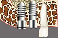 Graphic of two dental implants placed in jaw next to a natural tooth