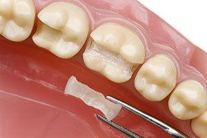 A dental inlay held with tweezers near a model of teeth