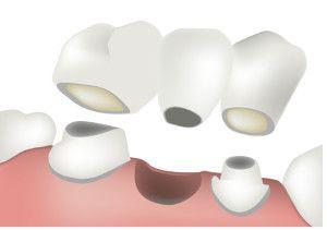 Cartoon of a dental bridge being placed on prepared teeth