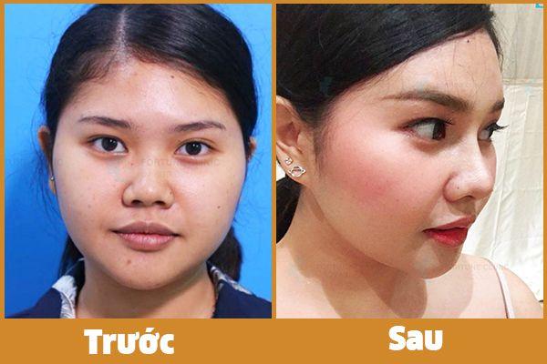 khách hàng nâng mũi s line bằng phương pháp nâng mũi không phẫu thuật