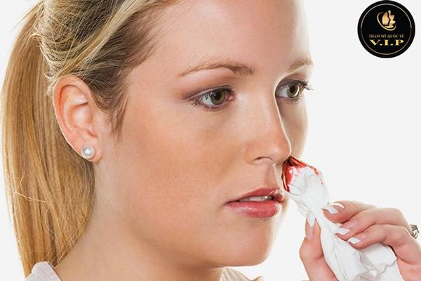 nâng mũi xong bị chảy máu