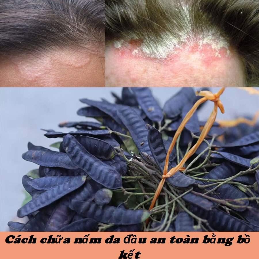 cách trị nấm da đầu bằng bồ kết