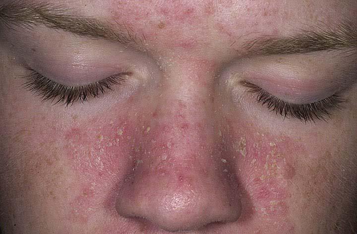 cách trị viêm da tiết bã nhờn ở mặt