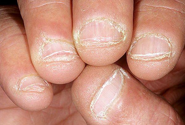 nấm móng tay chân