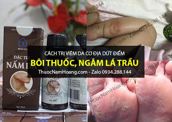 thuốc chữa viêm da cơ địa ở chân