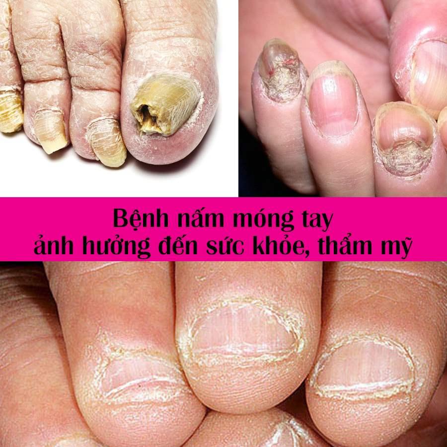 cách chữa cụt thối móng tay