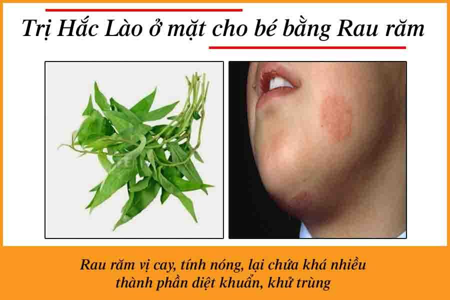 chữa hắc lào trên mặt bằng rau răm