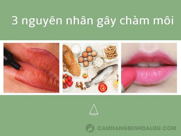 nguyên nhân chàm môi
