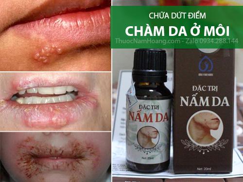 chữa chàm môi bằng đông y
