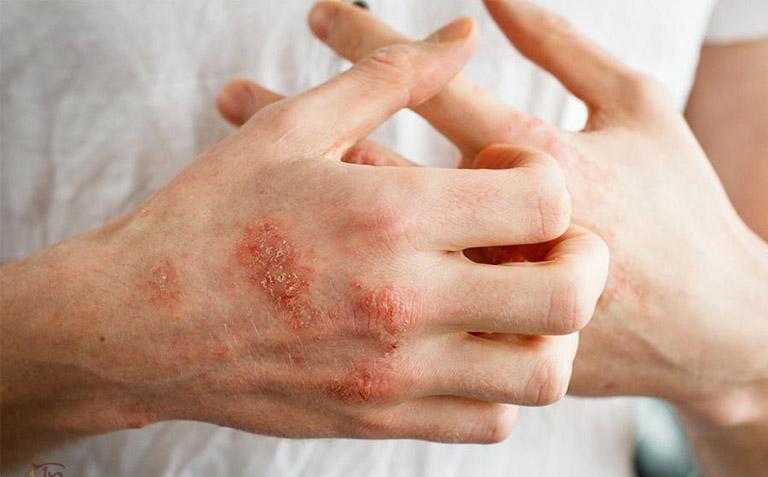 cách trị bệnh chàm khô đầu ngón tay