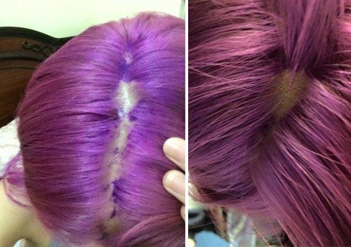 bị nấm da đầu  có nên nhuộn tóc