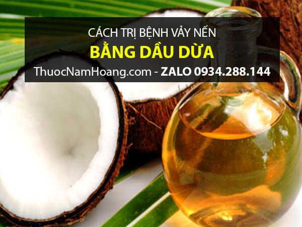 cách chựa vảy nến da đầu bằng dầu dừa