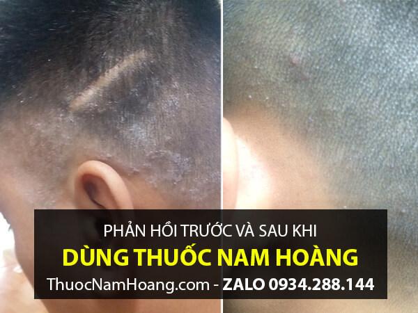 trước và sau khi trị vảy nến da đầu