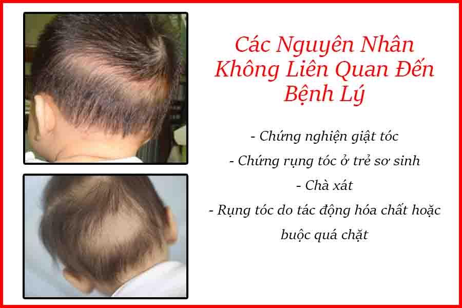 nguyên nhân bệnh rụng tóc ở trẻ em