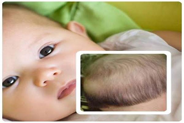 bệnh rụng tóc ở trẻ em