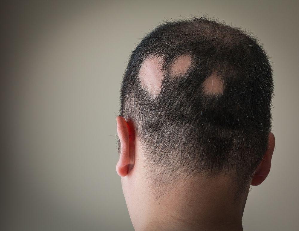 rụng tóc từng  mảng