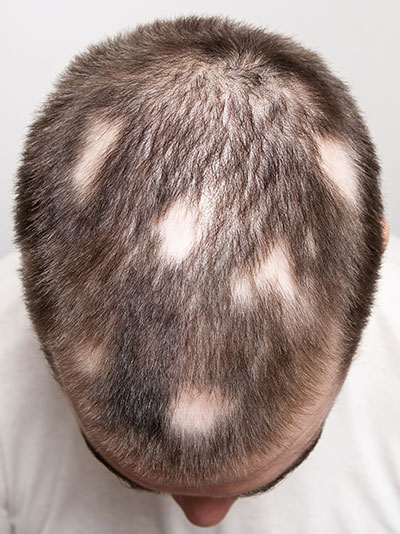 rụng tóc từng mảng nến biết