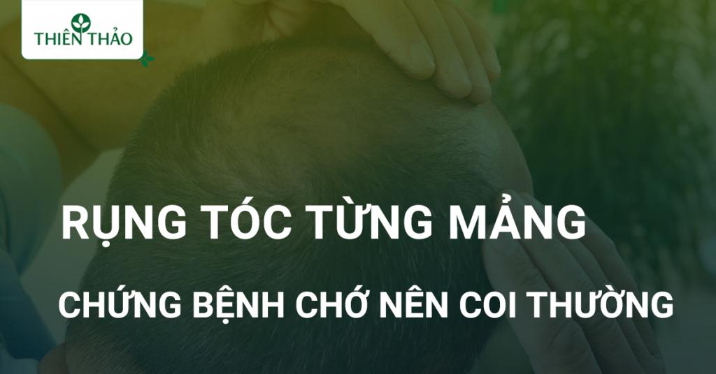 rụng tóc từng mảng có nguy hiểm không