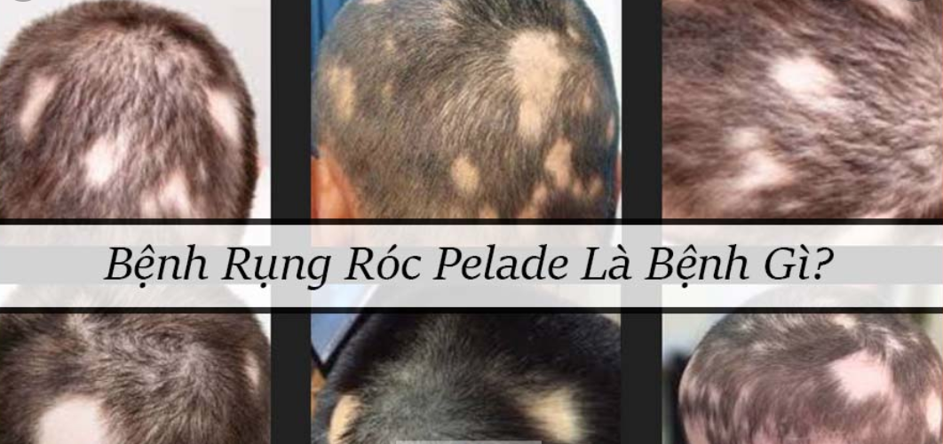 rụng tóc plelade là bị gì