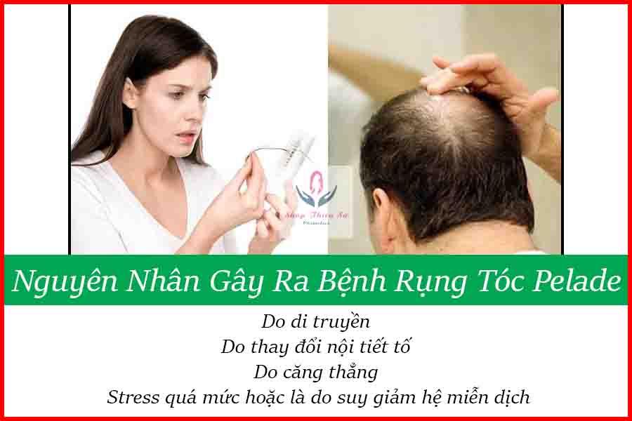 Nguyên nhân gây ra căn bệnh rụng tóc Pelade
