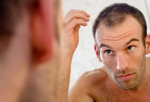 tóc dễ rụng ở nam giới