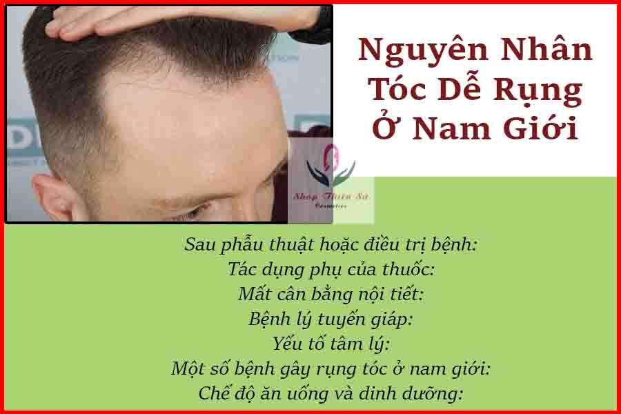 nguyên nhân tóc dễ rụng ở nam giới