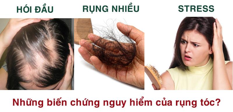 cách trị rụng tóc