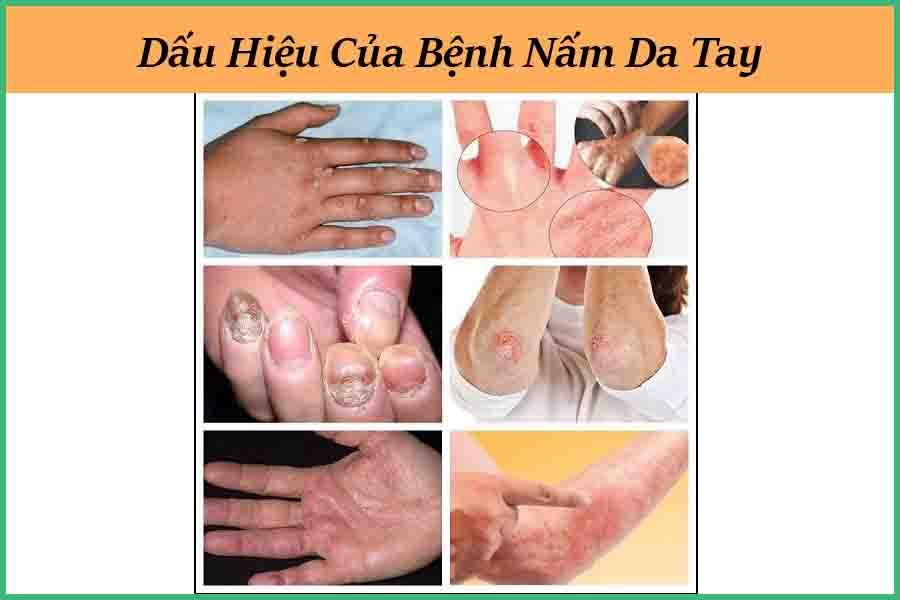 dấu hiệu nấm da tay