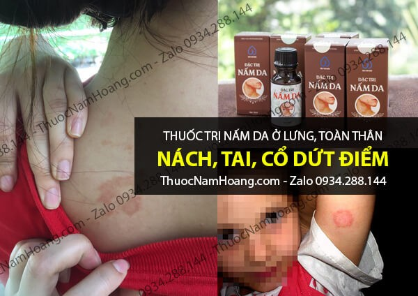 thuốc trị nấm da ở lưng và toàn thân