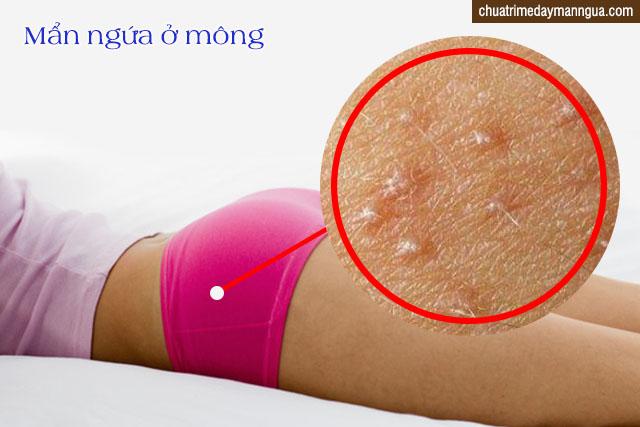 nấm da ở mông có lây không