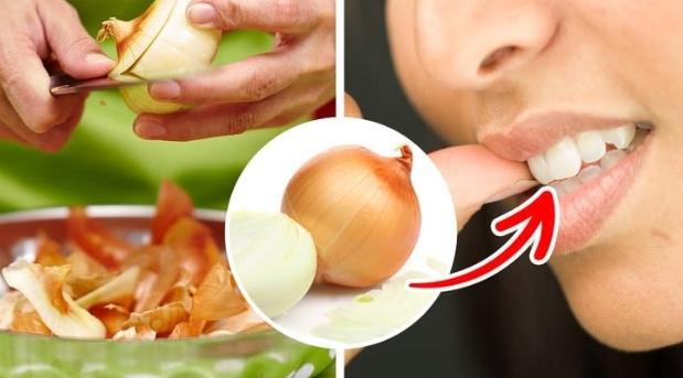 cách chữa đau răng khôn bằng hành tây