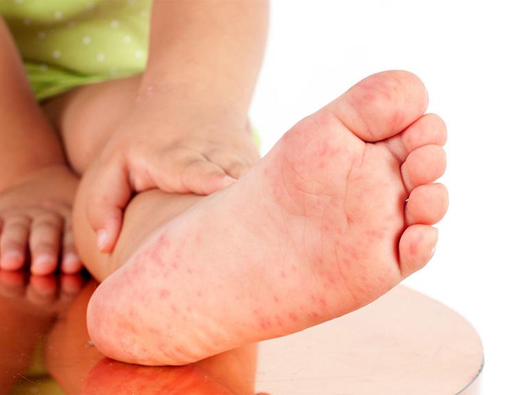 trẻ bị ngứa chân