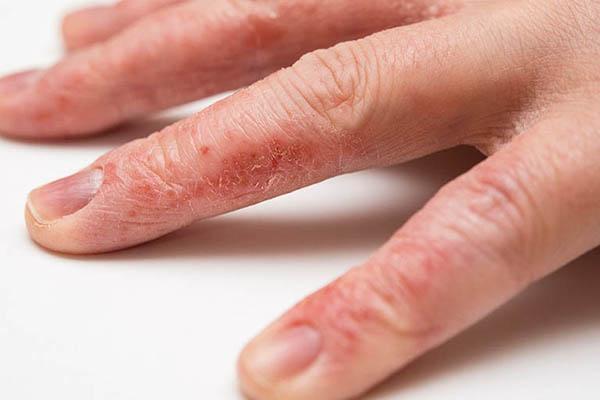 bệnh nứt da ngón tay