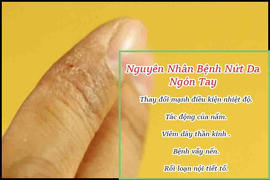 nguyên nhân bệnh nứt  da đầu ngón tay