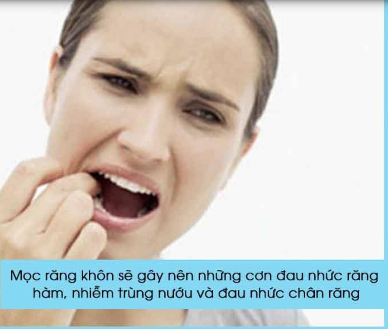 mọc răng khôn gây đau nhức