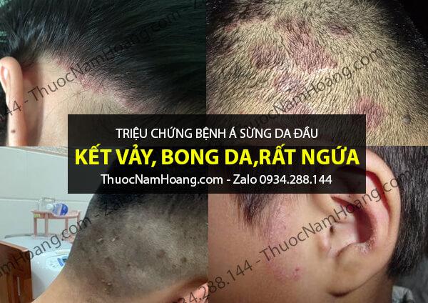 triệu chứng bệnh á sừng da đầu