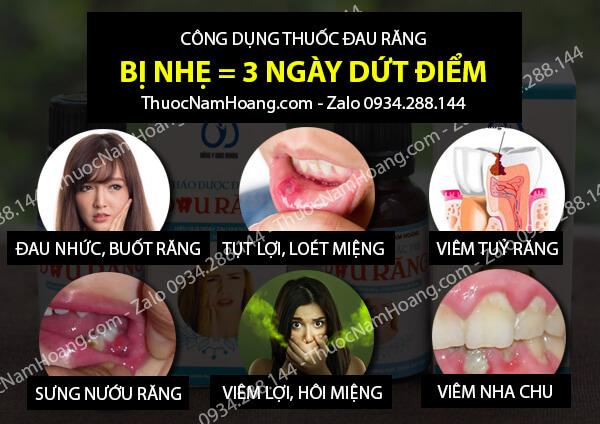 thuốc trị nhức răng khi mang thai