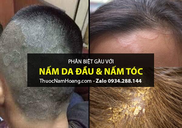 phân biệt gàu, nấm da đầu, vảy nến da đầu