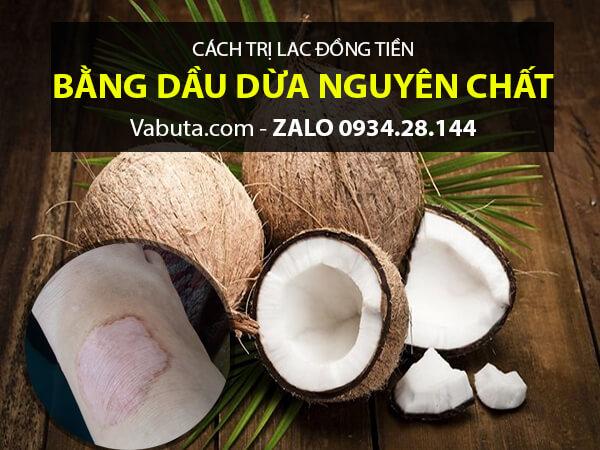 Dầu Dừa trị lác đồng tiền