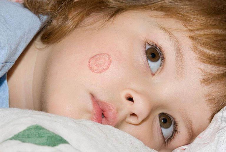 dấu hiệu bệnh lác đồng tiền ở trẻ