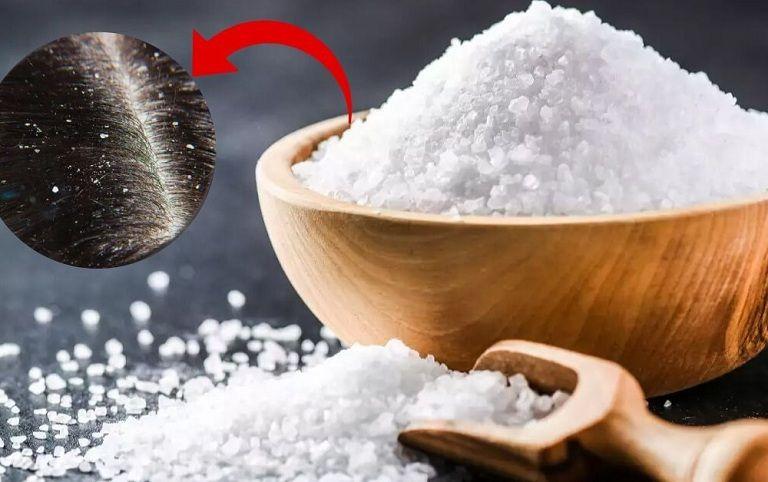 Muối trắng giúp giảm gàu và rụng tóc